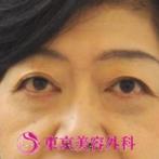 【目の下タルミ取り|ar2022】タルミ取りで若返りの症例