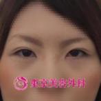 【埋没法|ar2485】重い一重瞼から末広型二重への症例