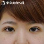 【埋没二重・まぶたの脂肪取り|gz2765】重い一重から脂肪をとってスッキリとした目元にの症例