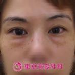 【目の下脂肪取り|ar3511】目の下のぽっこり脂肪がきれいになくなりました!の症例