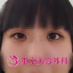 【埋没法|ar3562】片目が一重の症例