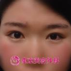 【埋没法|ar3626】CUTEな目に変身の症例