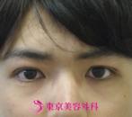 【埋没法|ak】二重の幅を広げて印象的な目元にの症例