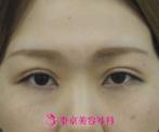 【二重・目頭切開|ak2978】パッチリ美人な目元にの症例
