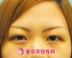 【埋没法|ak880】埋没法でよりcuteな目元にの症例