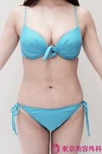 【脂肪吸引|gz342】魅せる美くびれ★の症例