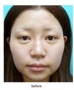 【鼻先形成】本当に美しい鼻を目指して  当院オリジナルの最新鼻先形成術の症例