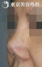 【他院修正|JJ021】感染による拘縮(ひきつれ)した鼻の症例