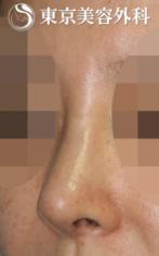 【鼻中隔延長|JJ014】上を向いた鼻の症例