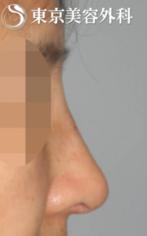 【鷲鼻|JJ016】鷲鼻形成の症例