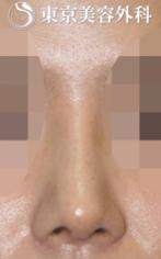 【骨切り術|JJ017】曲がった鼻の症例