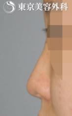 【隆鼻術|JJ001】低い鼻の症例