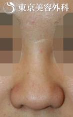 【鼻尖形成|JJ008】丸い鼻尖の症例