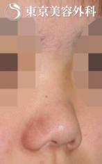 【鼻尖形成|JJ011】とても小さく低い鼻の症例