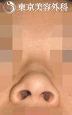 【小鼻縮小|JJ006】丸みのある小鼻の症例