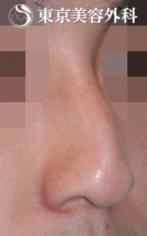 【隆鼻術|JJ018】曲がった鼻(斜鼻)の症例