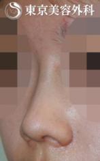 【隆鼻術|JJ003】低い鼻+団子鼻の症例