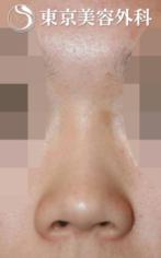 【鼻中隔延長|JJ012】低い鼻+上を向いた鼻の症例