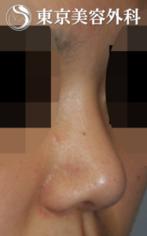 【隆鼻術|JJ004】隆鼻(小さい鼻)の症例
