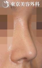 【鼻尖形成|JJ010】大きく低い鼻尖の症例