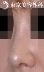 【鼻中隔延長|JJ013】低くて上を向いた鼻の症例
