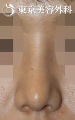 【小鼻縮小|JJ005】幅の広い鼻の症例