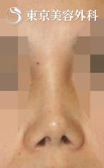 【他院修正|JJ019】鼻尖形成により細くなりすぎた鼻先と鼻孔の症例