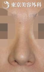 【鼻尖形成|JJ007】丸い鼻尖の症例