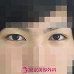 【オープンアイズ|ok4761】凛々しい顔にの症例