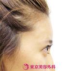 【額ヒアルロン酸|si326】ふっくらした女性らしい額にの症例