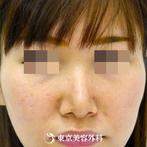 【鼻尖形成&小鼻縮小|gz2851】広がった鼻を整え、女性らしい顔立ちへの症例