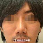 【鼻尖形成|gz482】鼻先を整えてすっきりとしたラインにの症例