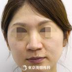 【鼻ヒアルロン酸|si211】メスを使用せず数分で思い通りの鼻筋にの症例