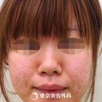 【隆鼻術|ar2341】鼻を高くしスッと通った鼻筋にの症例