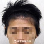 【オリジナル発毛薬・メソセラピー|ar3277】男性発毛 年齢:26歳の症例