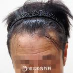 【オリジナル発毛薬・メソセラピー|fy5568】男性発毛 年齢:40歳の症例
