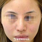 【鼻骨骨切り&鷲鼻削り&鼻尖縮小|gz1921】やさしく女性らしい顔立ちにの症例