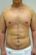 【マッスルボディ・脂肪吸引|gz1931】ボディメイクでシックスパックの腹筋にの症例