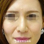 【鼻尖形成|gz1946】鼻先を整えてすっきりと細い鼻先にの症例