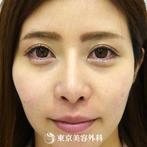 【小鼻縮小&隆鼻術&鼻中隔延長&鼻尖形成|gz212】鼻筋を整えて美しい顔立ちへの症例