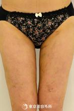 【脂肪吸引(大腿部全周・下臀部)|gz2133】リバウンドしにくい痩せ体質にの症例