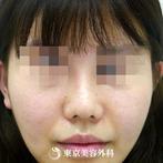 【鼻ドクターオーダーメイド|gz3344】鼻先を細く整えモデルのようなシャープな鼻にの症例