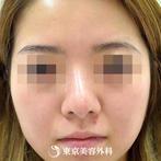 【鼻オーダーメイド|gz3671】鼻先を高くすっと伸びたきれいなラインにの症例