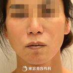 【フェイスリフト+こめかみリフト|gz3706】顔全体のしわとたるみを一気に解消の症例