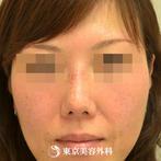 【鼻尖形成&プロテーゼ抜去(他院修正)&ダーマルファット|gz3858】鼻先を整えてすっきりしたラインにの症例