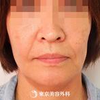 【フェイスリフト|ok6785】顔のタルミを引き上げて若々しい印象にの症例