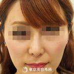 【鼻尖形成(耳介軟骨)&鼻プロテーゼ|ou587】鼻を高く美しい鼻先にの症例