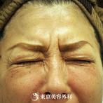 【目尻ボトックス|ou707】表情のくせによる頑固なしわにの症例