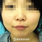 【えらボトックス|ak1883】注射だけで自然な小顔にの症例