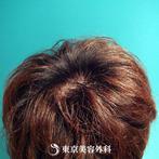 【オリジナル発毛薬・メソセラピー|fy2921】男性発毛 年齢:29歳の症例